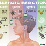 5 Bahan Makanan Paling Umum Penyebab Gangguan Alergi Pada Anak