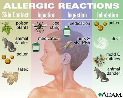 gangguan alergi